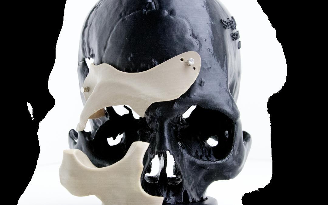 Bahnbrechende Entwicklung im Gesundheitswesen – 3D-gedruckte biokompatible PEEK-Medizinprodukte auf Abruf
