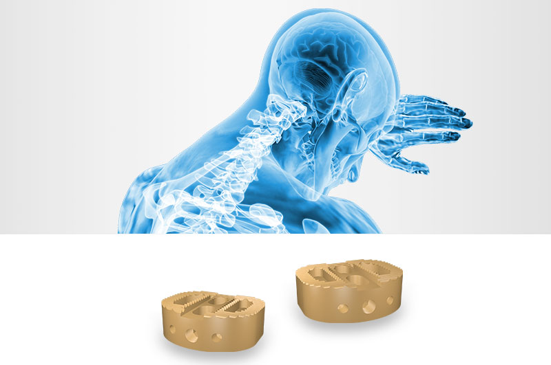 Apium PEEK Medical 3D Printing Webinars